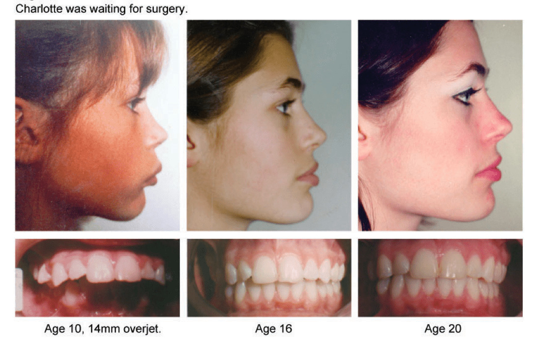 Fig. 7. Charlotte at 10 years old was told she would need to have jaw surgery to deal with an upper jaw that sat 14mm in front of the mandible. Orthotropics and facial posture training largely corrected the problem in six years. [Courtesy of Dr. John Mew]